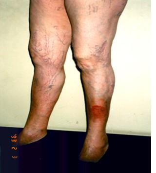 Se è possibile in un bagno dopo operazione di varicosity