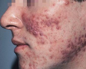 Epilazione laser capelli sulla fronte